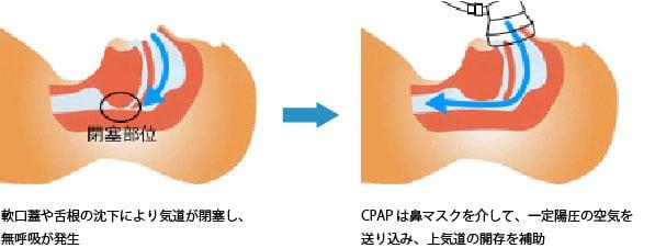 CPAP療法の図説